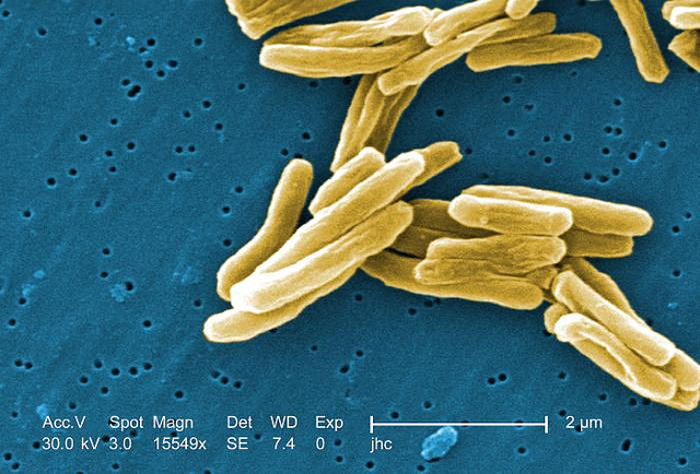 Under a high magnification of 15549x, this colorized scanning electron micrograph (SEM) depicted some of the ultrastructural details seen in the cell wall configuration of a number of Gram-positive Mycobacterium tuberculosis bacteria.
