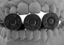 Is government prepared to 'bite the bullet'?